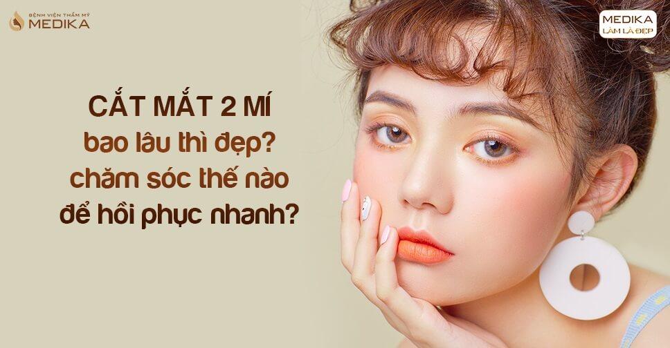 Cắt mắt 2 mí bao lâu thì đẹp, chăm sóc thế nào để hồi phục nhanh?