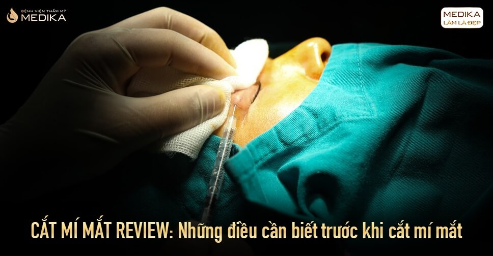 Cắt mí mắt review: Những điều cần biết trước khi cắt mí mắt