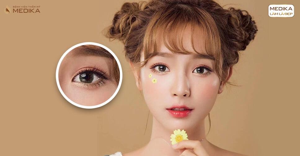 Cắt mí mắt và nhấn mí cái nào đẹp hơn?