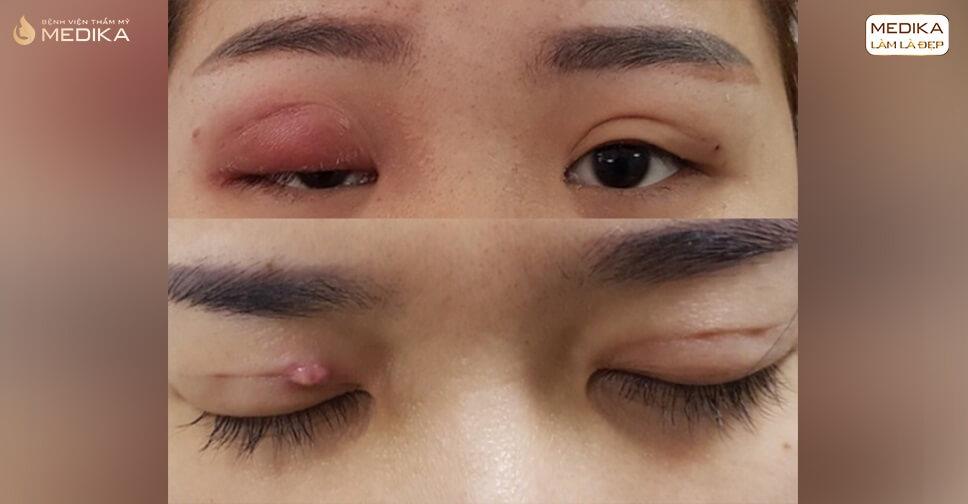 Cắt mí mắt xong bị ngứa có sao không?