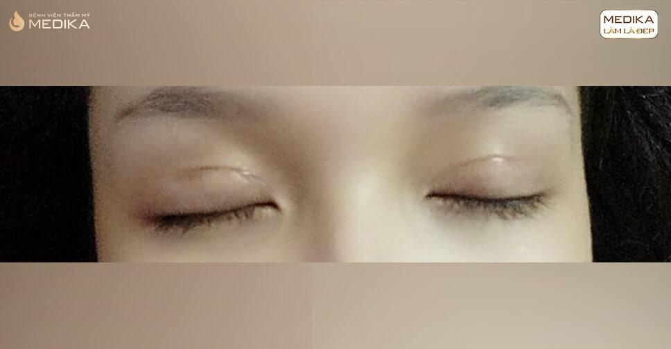 Có những cách giảm sẹo nào sau cắt mí mắt trên?