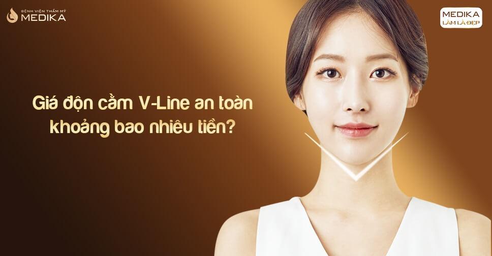 Giá độn cằm V-Line an toàn khoảng bao nhiêu tiền?