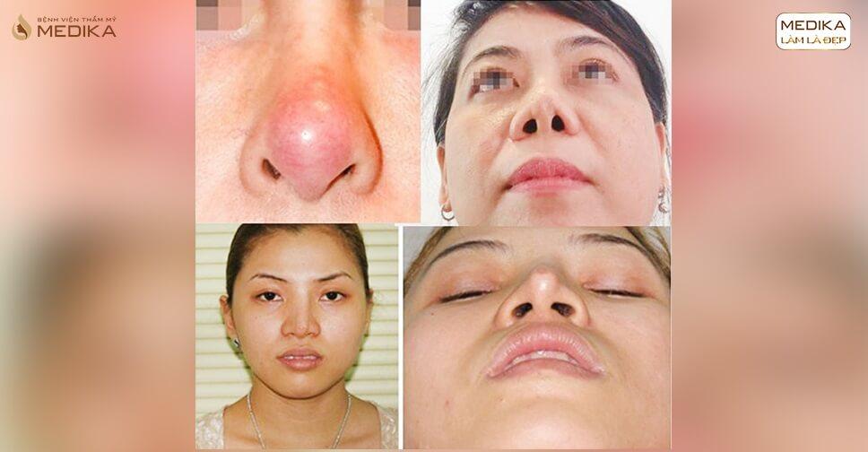 Hệ lụy phẫu thuật nâng mũi đẹp giá rẻ bạn nên biết bởi Bệnh viện thẩm mỹ MEDIKA?