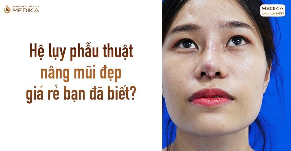 Hệ lụy phẫu thuật nâng mũi đẹp giá rẻ bạn nên biết từ Bệnh viện thẩm mỹ MEDIKA?