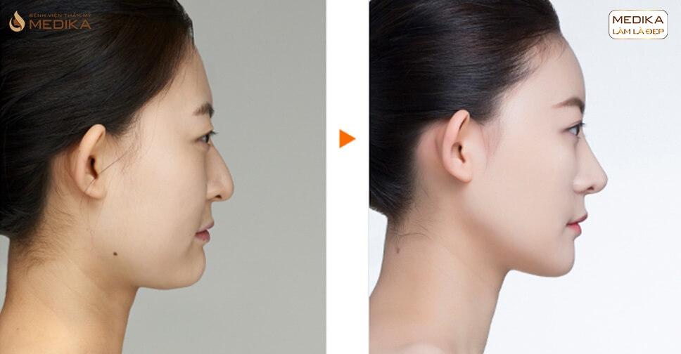 Hiểu đúng về kĩ thuật nâng mũi L line thời thượng bởi Bệnh viện thẩm mỹ MEDIKA
