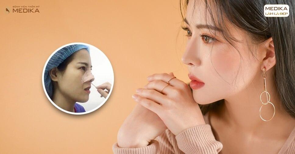 Hướng dẫn chăm sóc sau nâng mũi bọc sụn cho mũi đẹp hoàn hảo bởi Bệnh viện thẩm mỹ MEDIKA