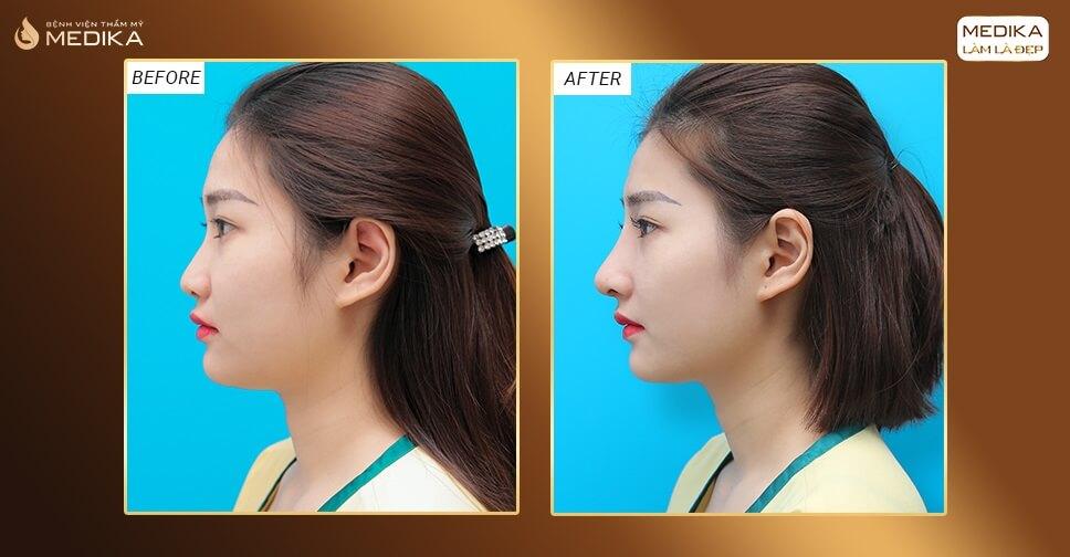 Kinh nghiệm nâng mũi để đạt hiệu quả tối ưu bởi Bệnh viện thẩm mỹ MEDIKA