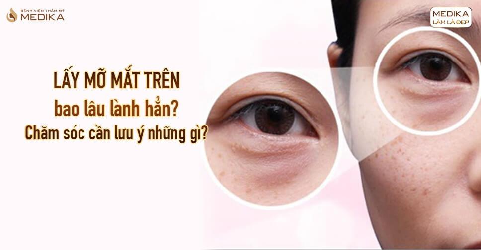 Lấy mỡ mắt trên bao lâu lành hẳn? Chăm sóc cần lưu ý những gì?