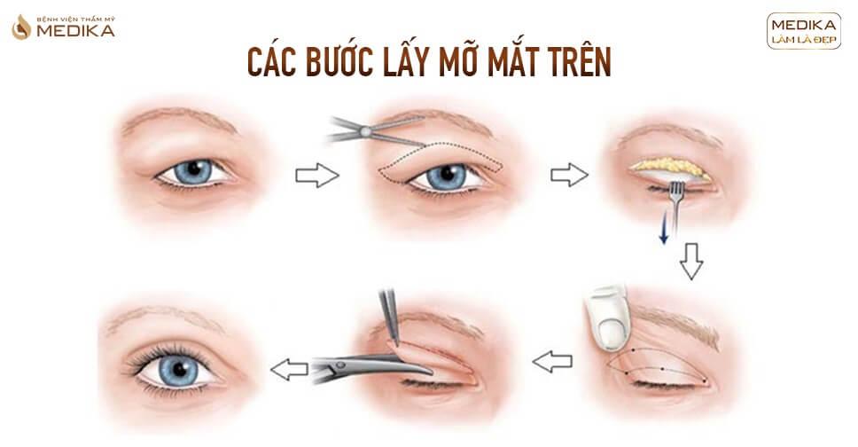 Lấy mỡ mắt trên bao lâu lành? Những lưu ý khi chăm sóc