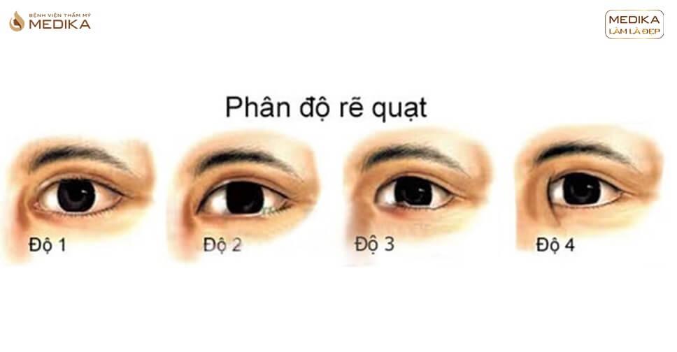 Mở rộng góc mắt trong và ngoài, đối tượng nào thì phù hợp?
