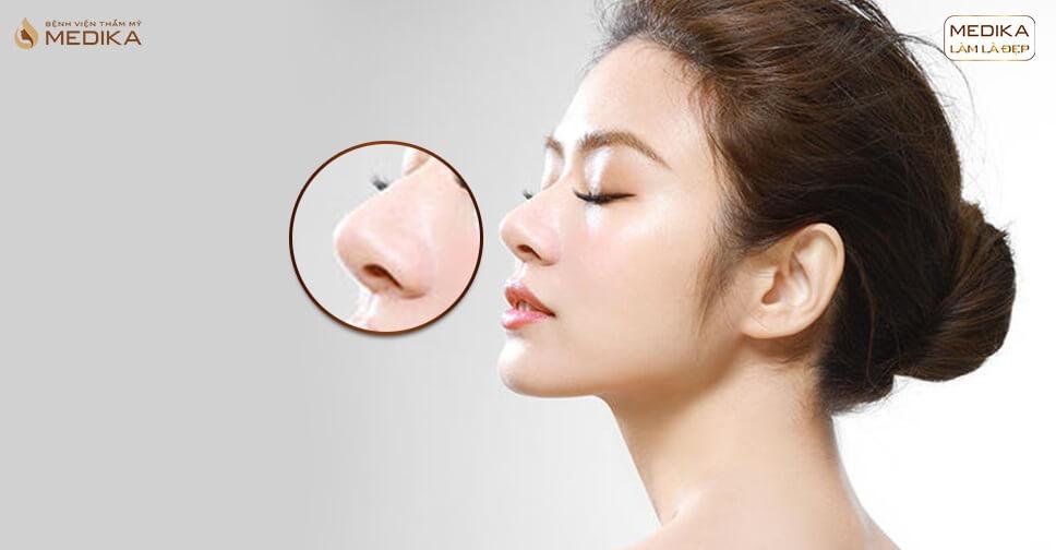 Nâng mũi đẹp duy trì hiệu quả được bao lâu bởi Bệnh viện thẩm mỹ MEDIKA?