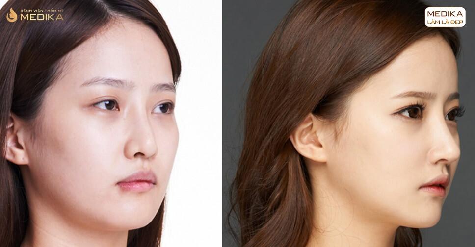 Nâng mũi Hàn Quốc có nguy hiểm không khi dùng sụn nhân tạo bởi Bệnh viện thẩm mỹ MEDIKA?