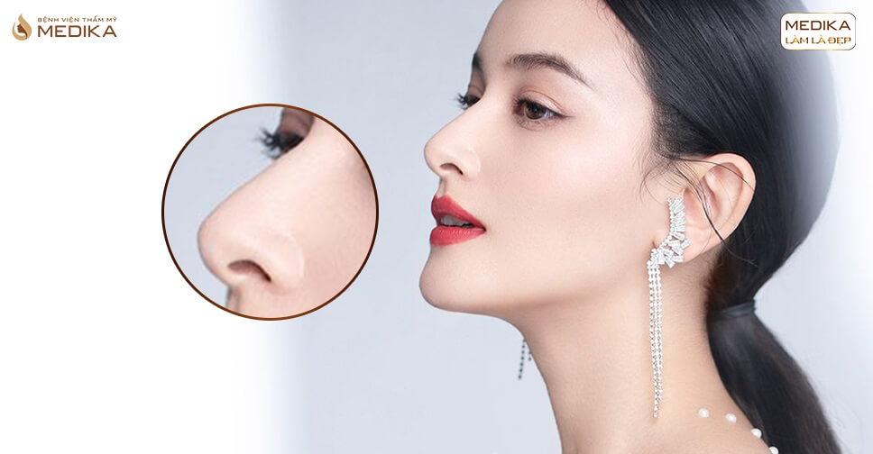 Nâng mũi Hàn Quốc dáng mũi đẹp chuẩn sao Hàn bởi Bệnh viện thẩm mỹ MEDIKA