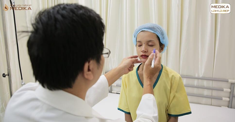 Nâng mũi sụn sườn có nguy hiểm đến cơ thể bạn từ Bệnh viện thẩm mỹ MEDIKA?