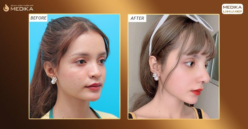 Nâng mũi sụn tự thân - Phương pháp bác sĩ khuyến khích sử dụng bởi Bệnh viện thẩm mỹ MEDIKA