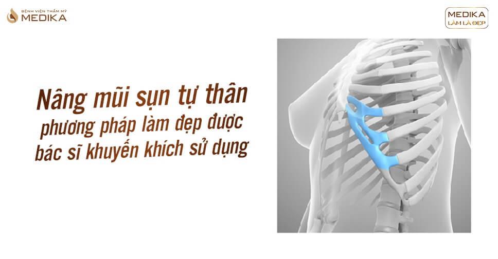 Nâng mũi sụn tự thân - Phương pháp bác sĩ khuyến khích sử dụng từ Bệnh viện thẩm mỹ MEDIKA