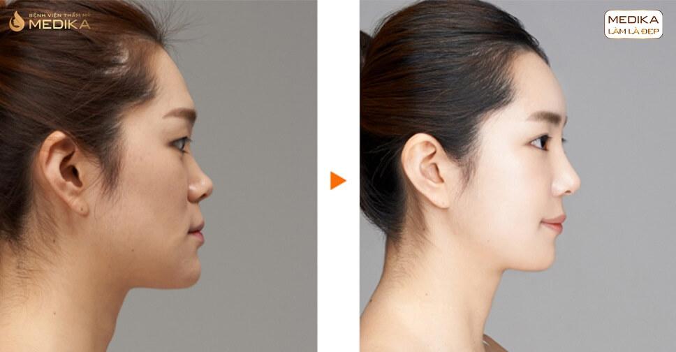 Nâng mũi sụn tự thân phương pháp giữ mũi đẹp mãi bởi Bệnh viện thẩm mỹ MEDIKA