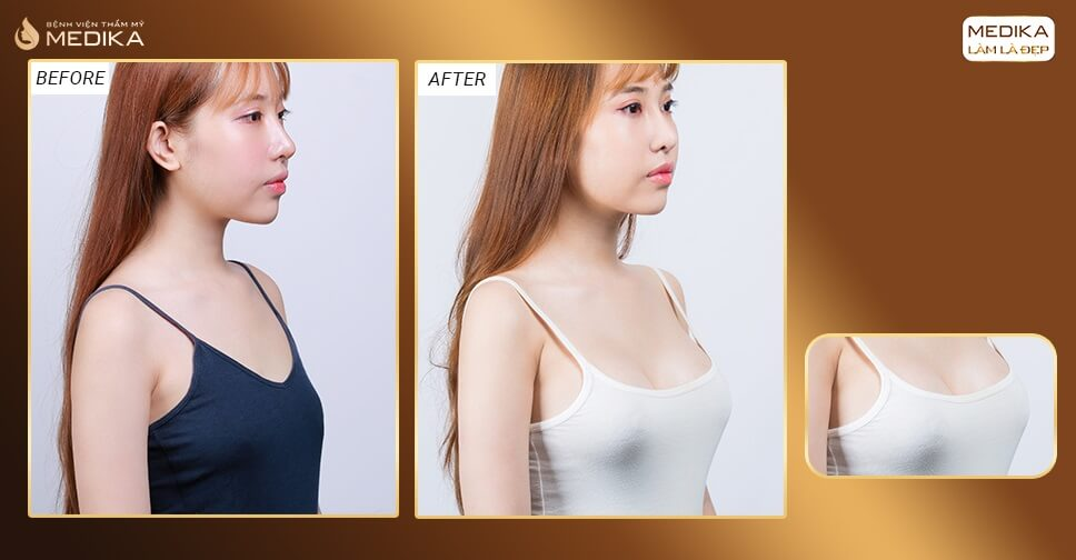 Nâng ngực bây giờ kịp đẹp đầu năm 2021 bởi Bệnh viện thẩm mỹ MEDIKA