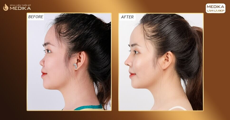 Những lí do khiến bạn nên thực hiện nâng mũi đẹp ở MEDIKA