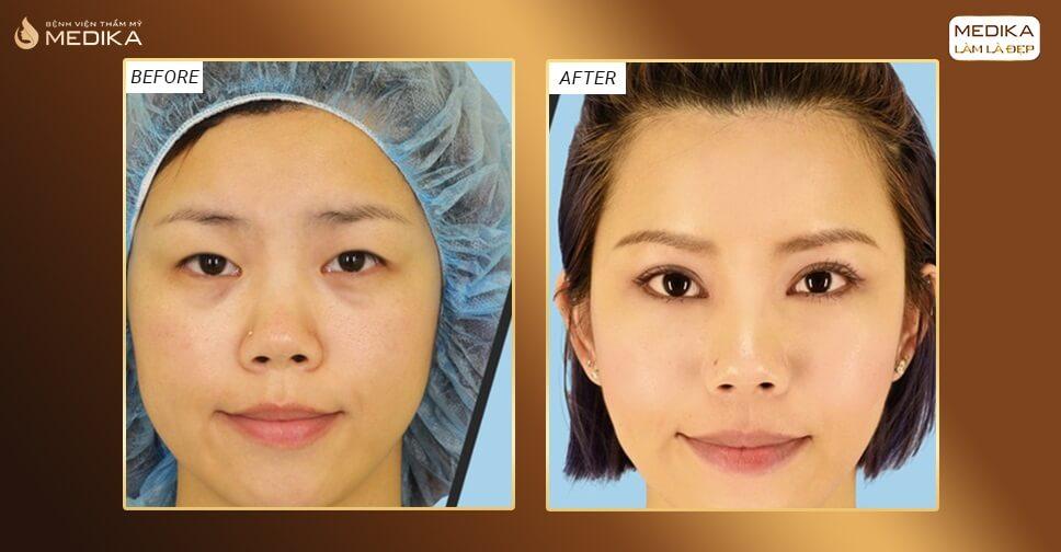 Phẫu thuật cắt mắt 2 mí bao lâu thì đẹp tự nhiên?