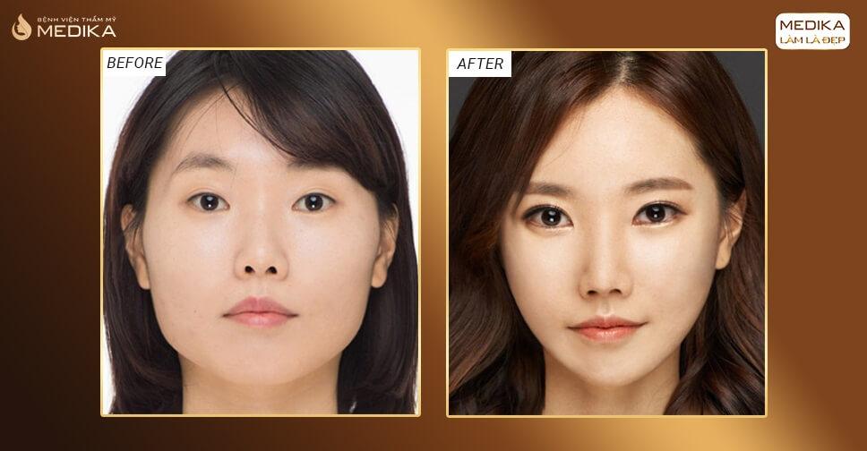 Phẫu thuật mở góc mắt – Sở hữu mắt to tròn như sao Hàn