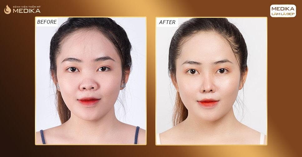Phẫu thuật nâng mũi đẹp không khó nếu biết những điều này bởi Bệnh viện thẩm mỹ MEDIKA