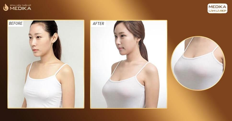 Phẫu thuật nâng ngực đẹp và an toàn tại MEDIKA