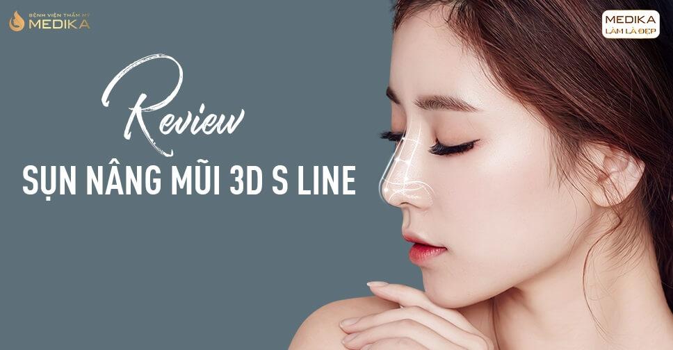 Review sụn nâng mũi 3D s line từ Bệnh viện thẩm mỹ MEDIKA