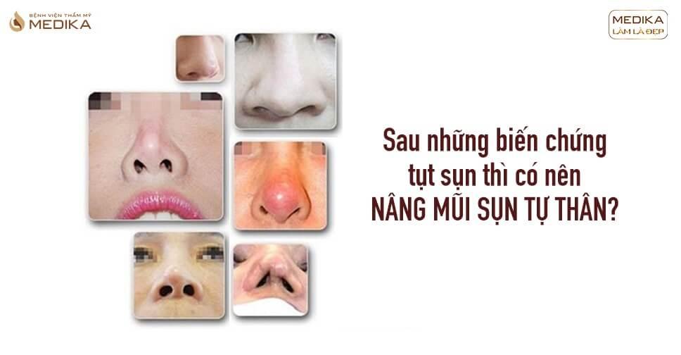 Sau những biến chứng tụt sụn thì có nên nâng mũi sụn tự thân từ Bệnh viện thẩm mỹ MEDIKA?