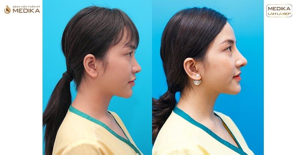 Tái tạo lại chiếc mũi sau tai nạn nhờ nâng mũi sụn sườn bởi Bệnh viện thẩm mỹ MEDIKA
