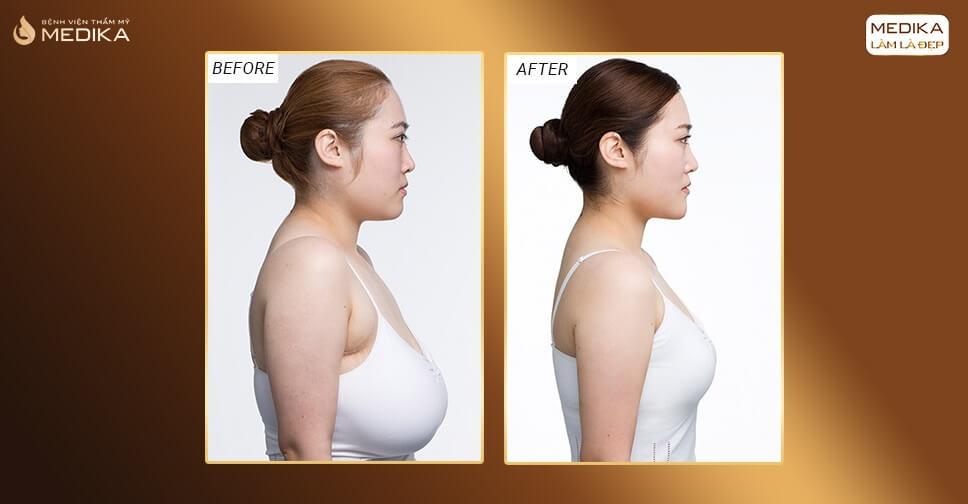 Thực hiện nâng ngực chảy xệ có khó lắm không bởi Bệnh viện thẩm mỹ MEDIKA?