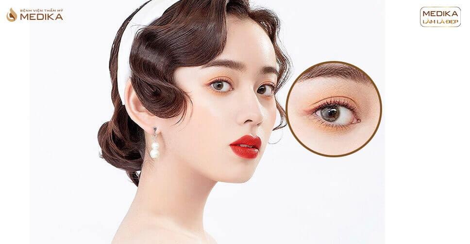 Hiểu đúng về phương pháp bấm mí mắt Hàn Quốc