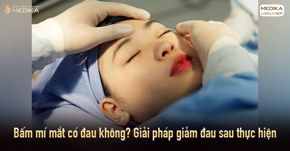 Bấm mí mắt có đau không? Giải pháp giảm đau sau thực hiện