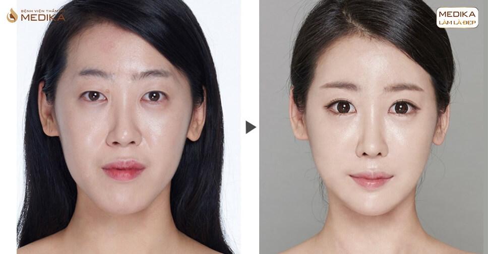 Bao nhiêu tuổi thì nên bấm mí Hàn Quốc