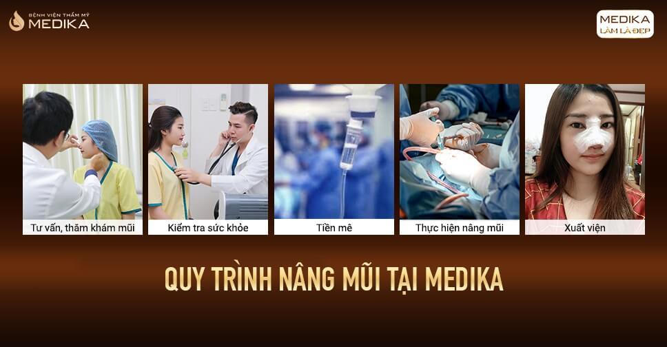 Bệnh viện nào nâng mũi đẹp tại Sài Gòn bởi Bệnh viện thẩm mỹ MEDIKA?