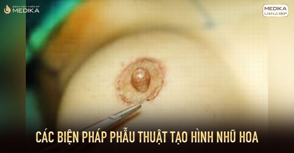 Các biện pháp phẫu thuật tạo hình nhũ hoa