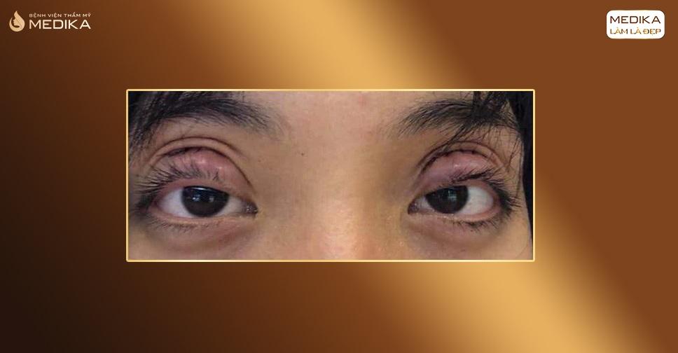 Cắt mắt hai mí hỏng, làm sao để sửa lại?