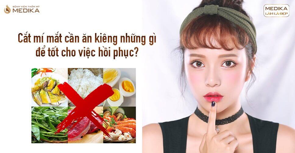 Cắt mí mắt cần ăn kiêng những gì?