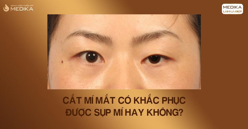 Cắt mí mắt có khắc phục sụp mí hay không?