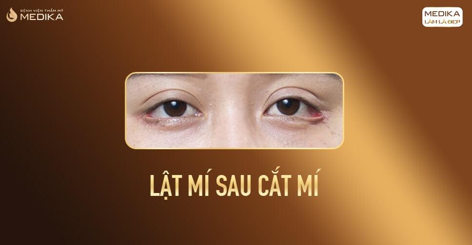 Cắt mí mắt trên và những biến chứng có thể gặp phải
