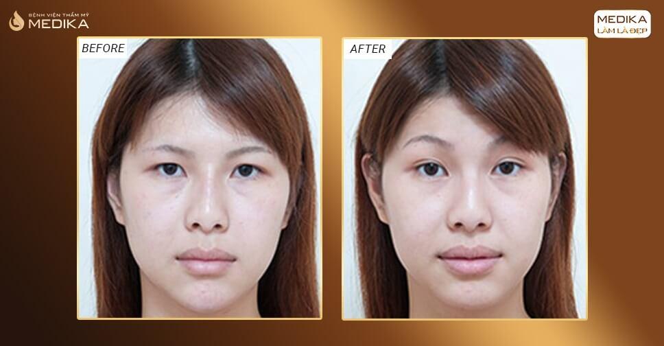 Có nên lấy mỡ mắt trên không? Lẫy mỡ mắt trên bao lâu lành?