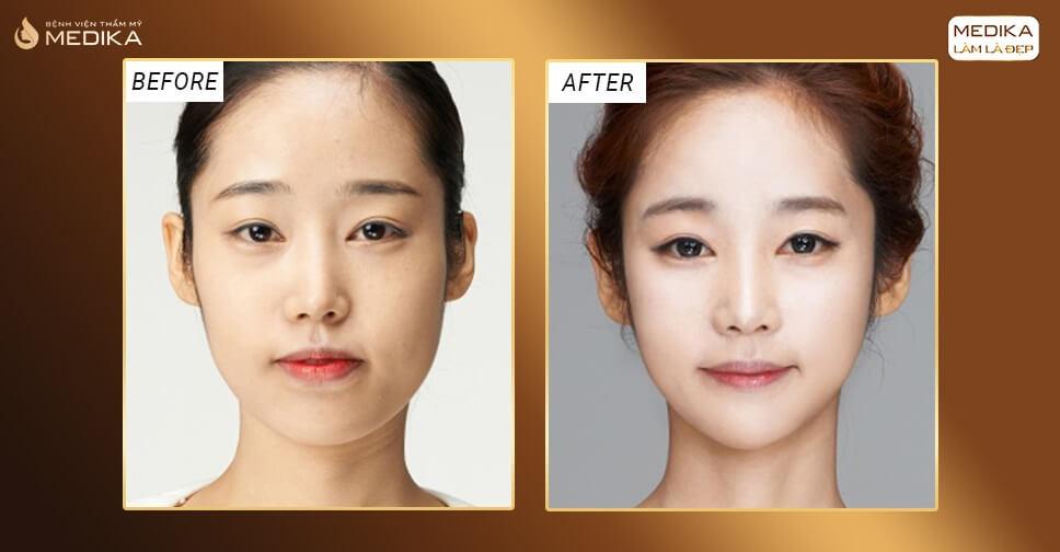Độn cằm V-line: Giải pháp sở hữu gương mặt đẹp chuẩn tỉ lệ