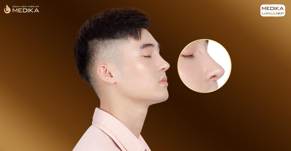 Giải pháp nâng mũi đẹp nào phù hợp với nam giới bởi Bệnh viện thẩm mỹ MEDIKA?