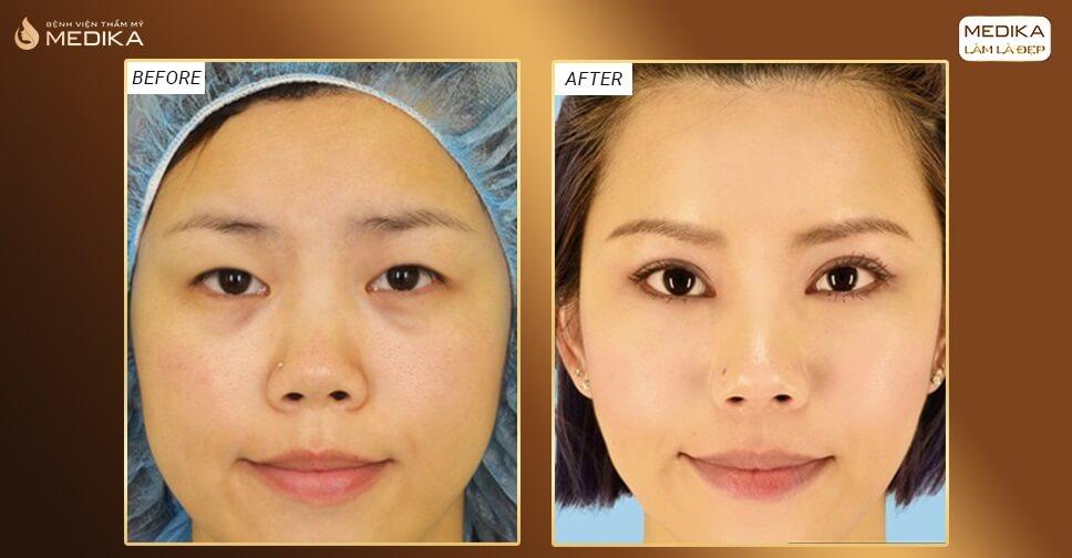 Góc giải đáp: Cắt mắt 2 mí có nguy hiểm và để lại biến chứng gì không?
