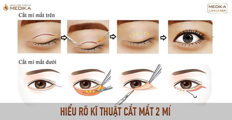 Hiểu rõ kĩ thuật cắt mắt 2 mí