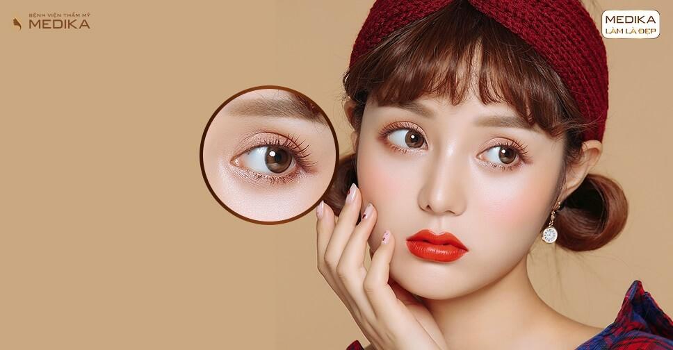 Làm rõ 4 vấn đề cần biết khi thực hiện nhấn mí mắt