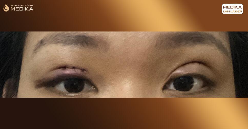 Làm sao để chỉnh sửa nếp mí không đều sau cắt mắt hai mí?