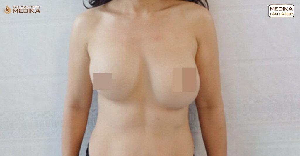 MEDIKA chuyên gia chỉnh sửa những ca phẫu thuật ngực hỏng