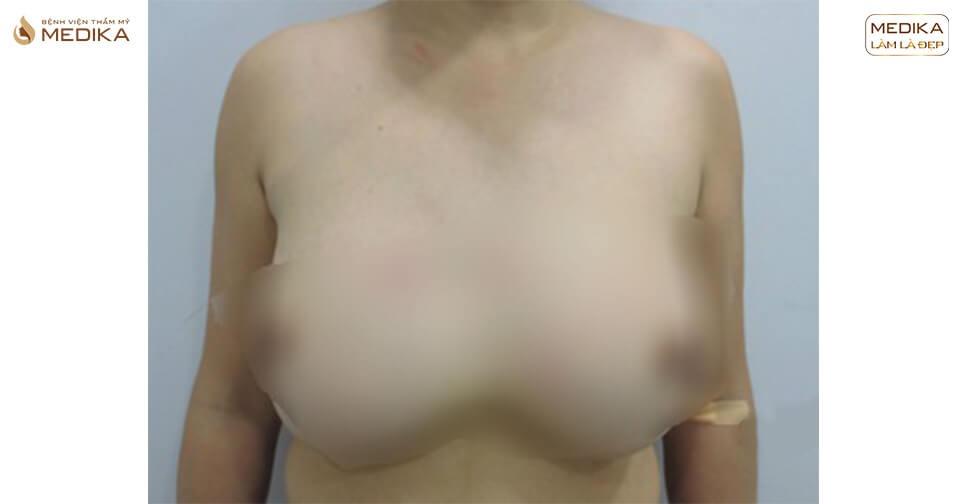 Muốn không phẫu thuật ngực hỏng thì đừng ham rẻ bởi Bệnh viện thẩm mỹ MEDIKA