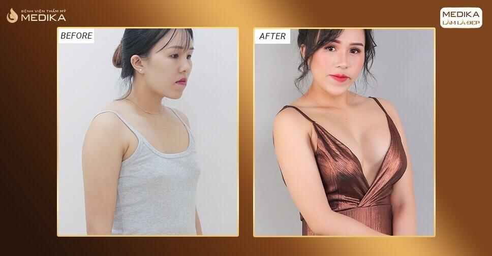 Muốn nâng ngực đẹp nên chọn size lớn hay nhỏ bởi Bệnh viện thẩm mỹ MEDIKA?